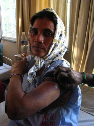 Rekha Chavan shows the bruises four days after she was beaten up. Photo: Amruta Byatnal